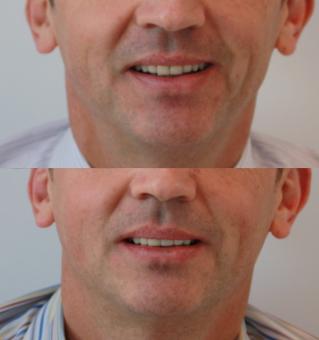 facettes prothèse