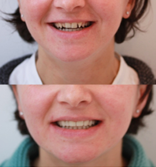 modifier la forme des dents par facettes dentaires dr zisserman. Black Bedroom Furniture Sets. Home Design Ideas