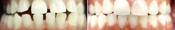 espaces inter-dentaires