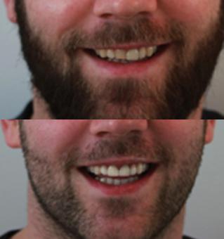 modifier l 39 alignement des dents par facettes dentaires dr zisserman. Black Bedroom Furniture Sets. Home Design Ideas